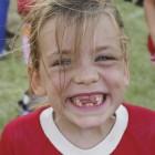 Niña con ausencia de algunos dientes