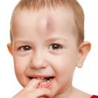 Niño con un golpe en la frente