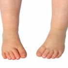 puntas de los pies hacia dentro