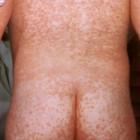 Niño con sarampión