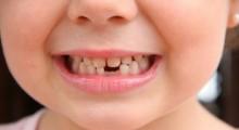 Dentatura de una niña