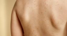 Niña con exantema en la espalda