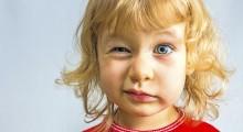 Niño con parálisis facial