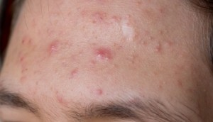 El sodio tiosulfat al acné