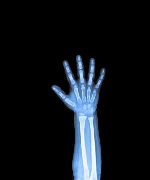 Radiografía de la muñeca