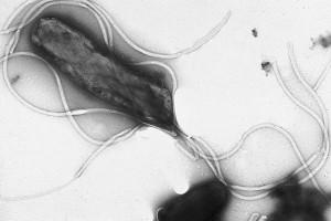 Helicobacter pylori al microscopio electrónico. Fotografíad e Yutaka Tsutsumi