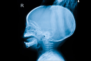 Radiografía de un cráneo
