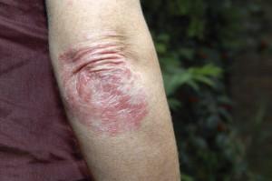 Lesiones de psoriasis