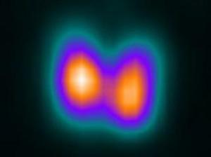 Gammagrafía tiroidea