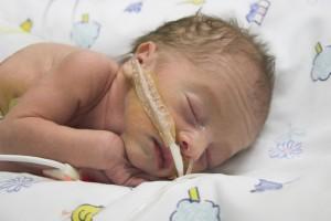 Recién nacido con gafas de oxígeno