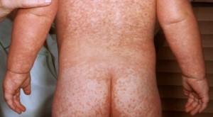 Niño con sarampión (fuente: CDC)