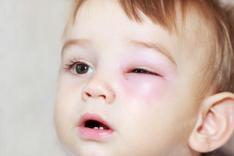celulitis facial en la nariz