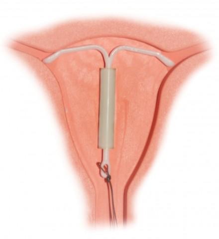 dispositivo intrauterino de cobre como se pone