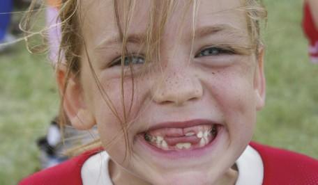 Niña con varios dientes de menos