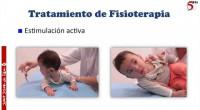 150. Tratamiento fisioterápico de la tortícolis muscular congénita.